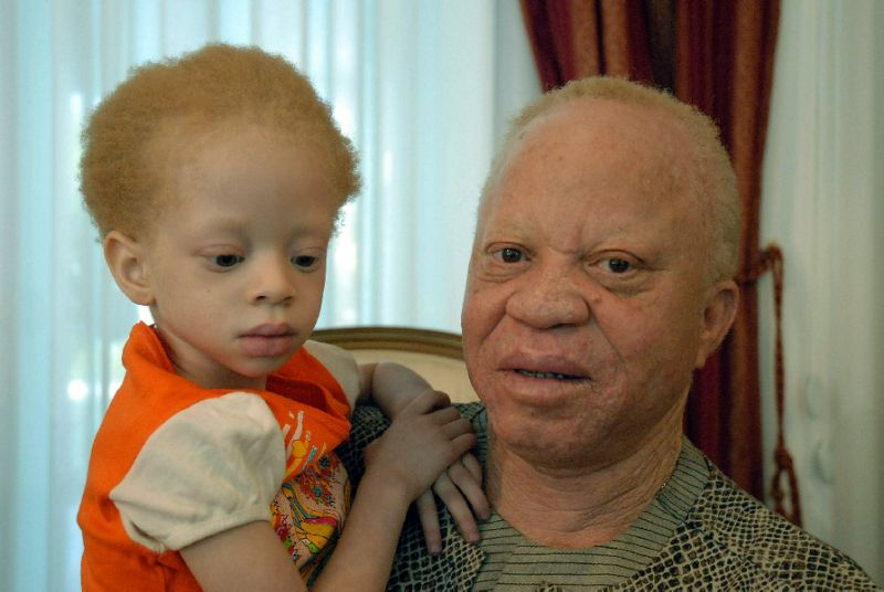 5-year-old girl with albinism Djeneba Diarra beheaded in suspected ritual murder in Mali