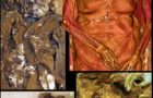 Weird Archaeological Found: Renaissance couple had hearts buried with each other